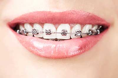 Brackets Pamplona